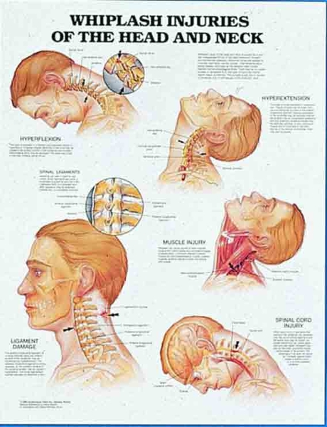 Whiplash Injuries to the Head and Neck Chart