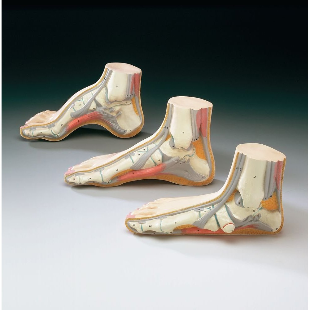 Flat foot side view model medwest medical supplies for Model of flat